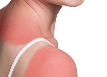 Protección solar oral